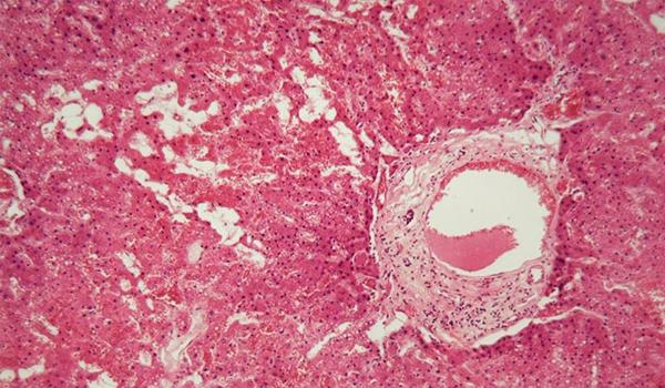 Celnova Pharma Amiloidosis qué tratamientos existen